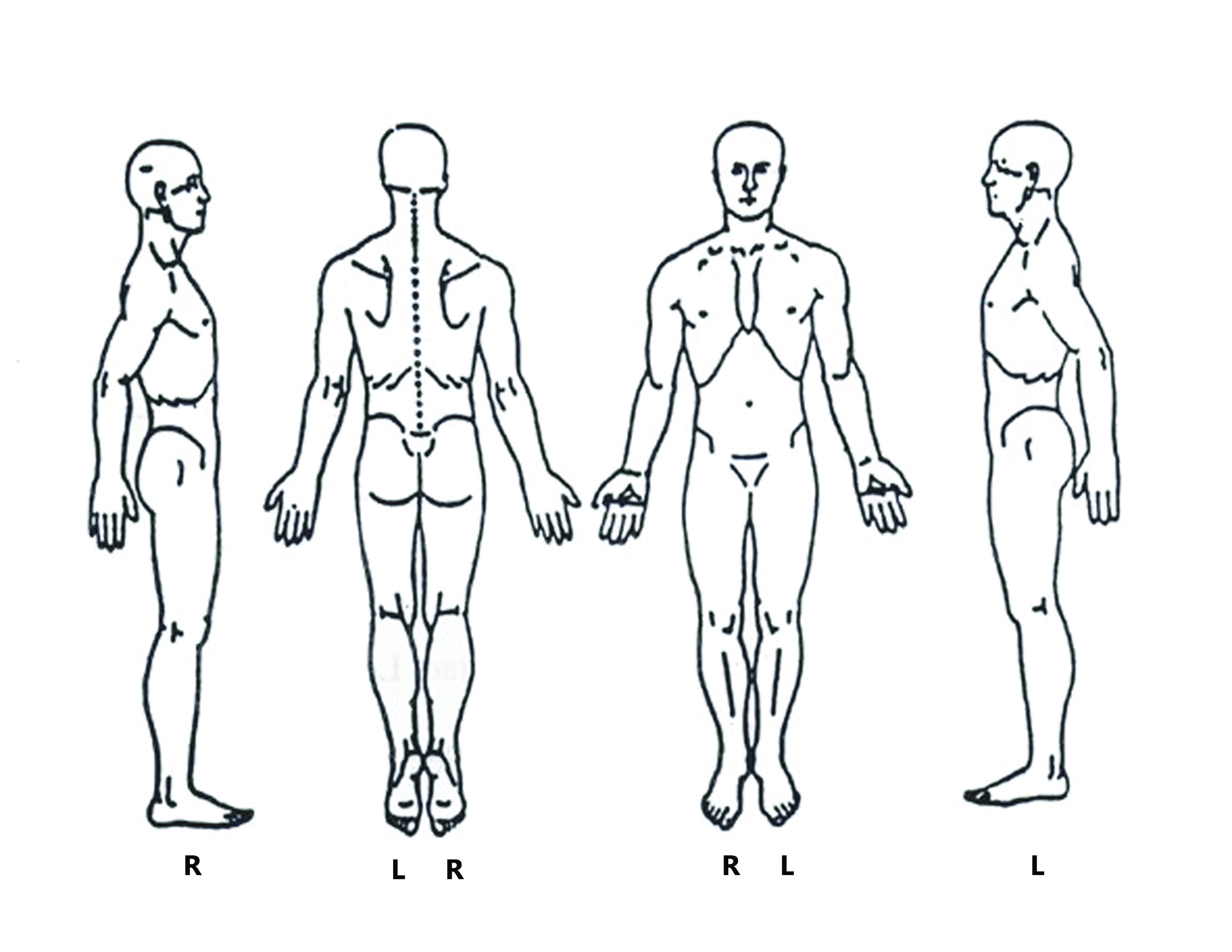 forms rh b wellbowenworks com pain diagram for women pain diagram for headache
